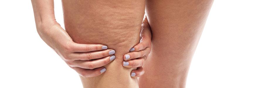 Eliminer la cellulite naturellement