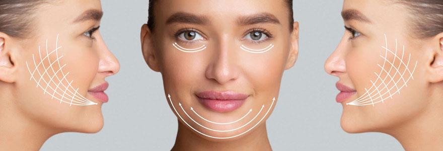 Lifting facial endoscopique